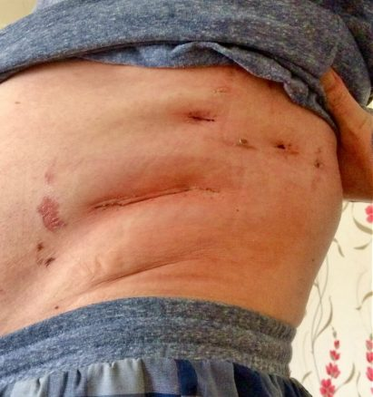 Scars After Kidney Surgery